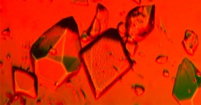 Área multidisciplinar, voltada ao estudo da estrutura atômica de materiais e proteínas a partir da difração de raios X em cristais, ganha impulso no Brasil com a construção de nova fonte de radiação síncrotron (imagem: Wikimedia)